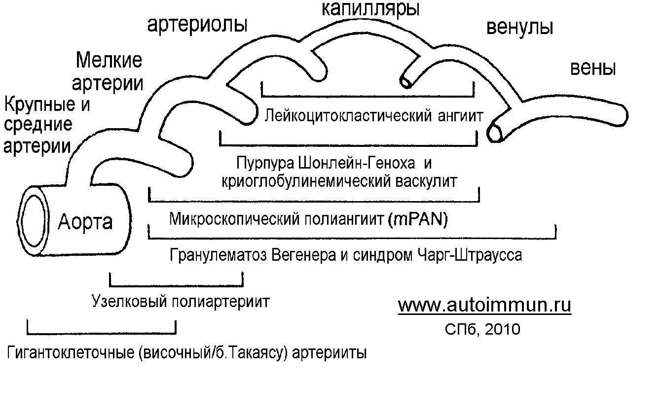 Полиартериит Нодозный